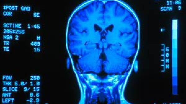 300-silent-stroke-memory-loss