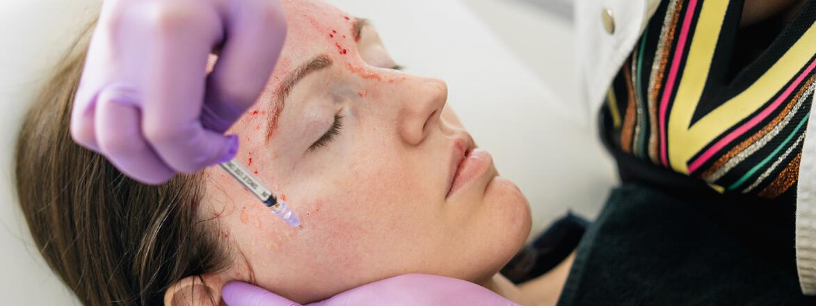 Revolutionary treatment of rejuvenation with blood plasma