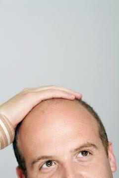 Baldness drug preventing prostate cancer