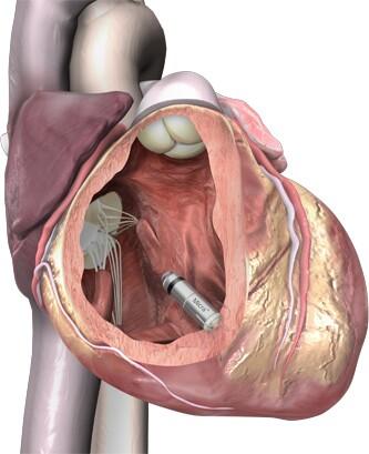 micra-in-heart