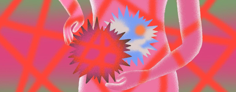 illustration of pain near uterus hysterectomy