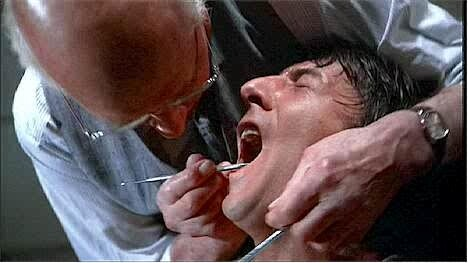 marathon-man-dental-scene