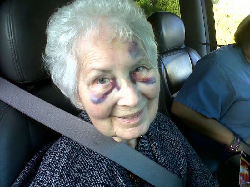 Mom with bruises from fractured nose