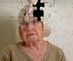 240-Alzheimer-population-future