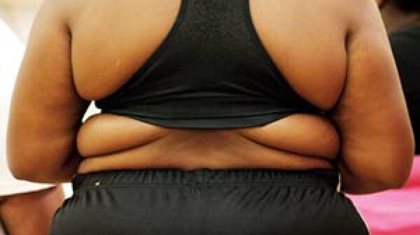 300-obesity-rates-unchanged (1)