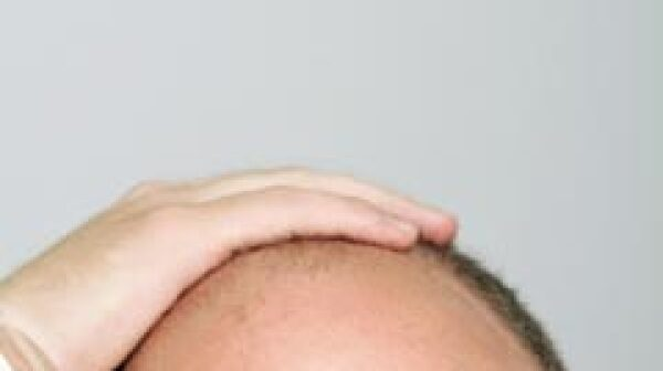 Baldness drug preventing prostate cancer