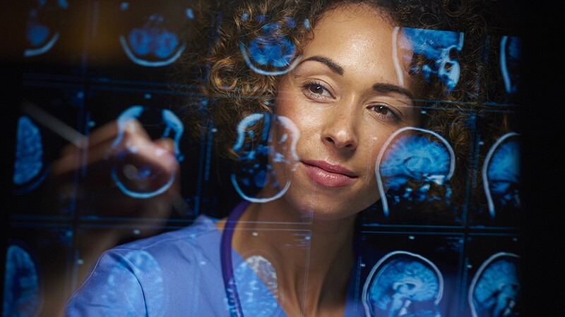 A female doctor looking at MRI scans of human brains