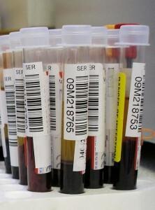 Blood_testwiki-222x300