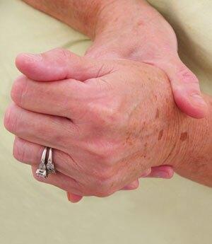 arthritis_hands2