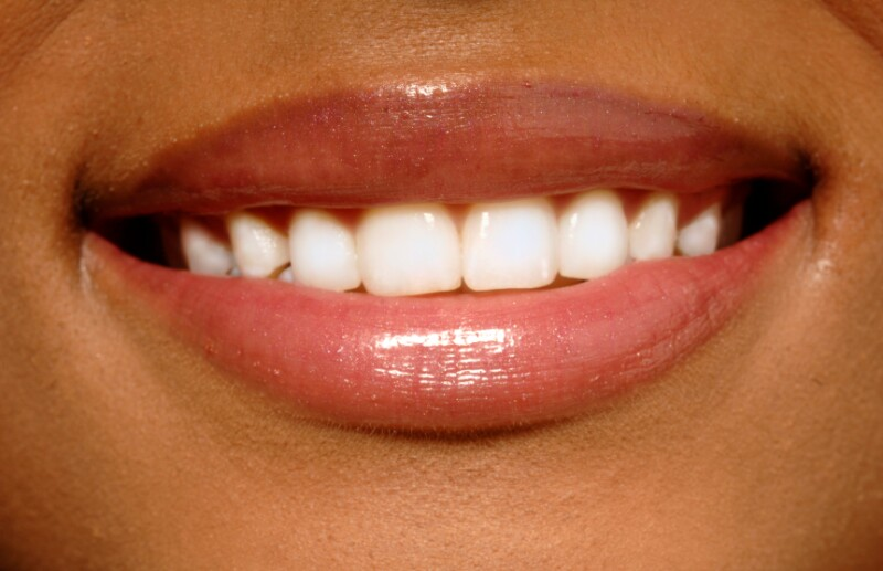Woman smiles with white teeth