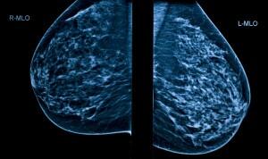 Mammogram screening with lump in one breast