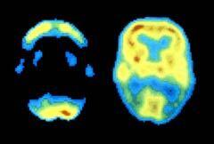 240-dementia-diabetes-study